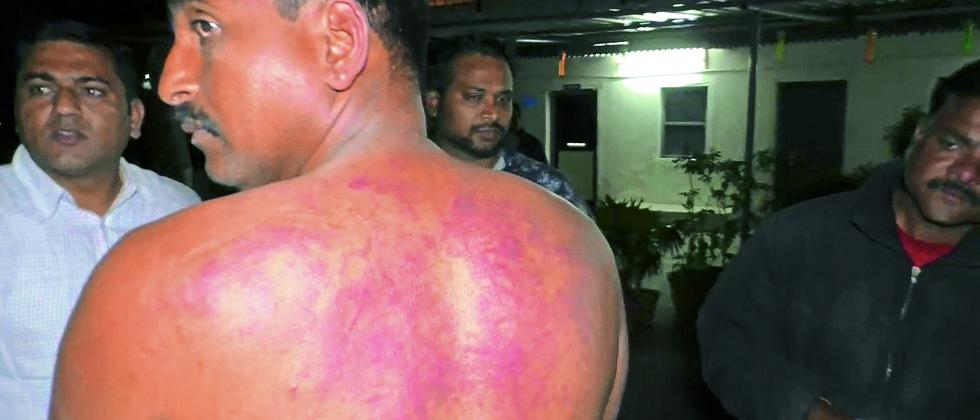 Sharad Pokharkar of Sambhaji Brigade was thrashed by around 50 Bajrang Dal members.